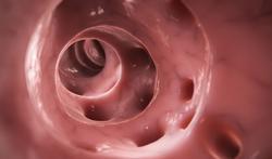 Diverticules et diverticulite : causes, symptômes et traitements