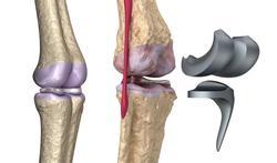 Prothèse de genou et de hanche : quelle durée de vie ?