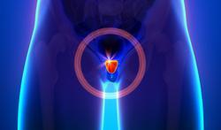 Cancer de la prostate : surveiller plutôt que traiter ?