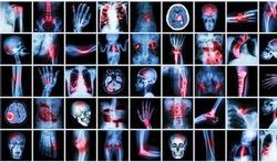 Te veel CT-scans bij kinderen