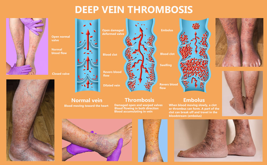 123-PAV-thrombose-been-econom-class-syndr-06-19.png