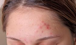 123-acne-voorhoofd-10-18.png