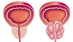 Prostaatklachten: deel 2. Goedaardige prostaatvergroting
