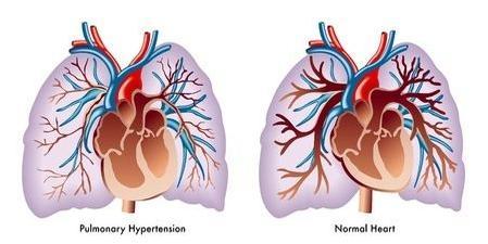 123-afb-PH-pulmonale-hypertensie-05-16.jpg