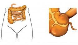 Veroorzaakt virus de ziekte van Crohn?