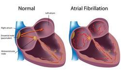 Voorkamer- of atriumfibrillatie: de meest voorkomende hartritmestoornis