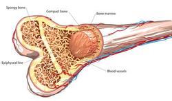 Ontsteking beenmerg voorspelt risico leukemie