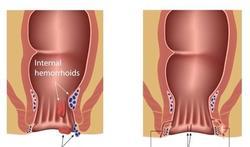 Behandeling van kloofjes in de anus (fissura ani)