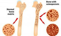 123-anat-osteoporosis-been-170_10.jpg