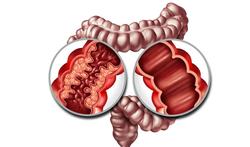 Ziekte van Crohn en colitis ulcerosa