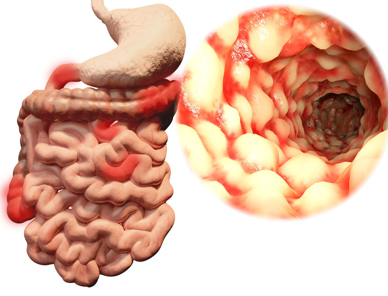 123-anatom-Z-v-Crohn-darm-1-03-19.png