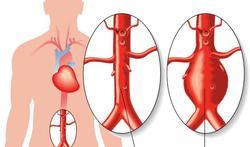 Het aneurysma