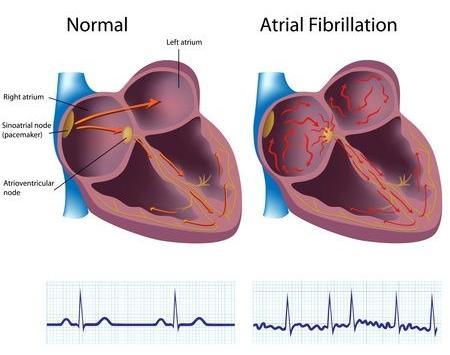 123-anatom-atriumfibrilltatie-VKfibr-2-06-16.jpg