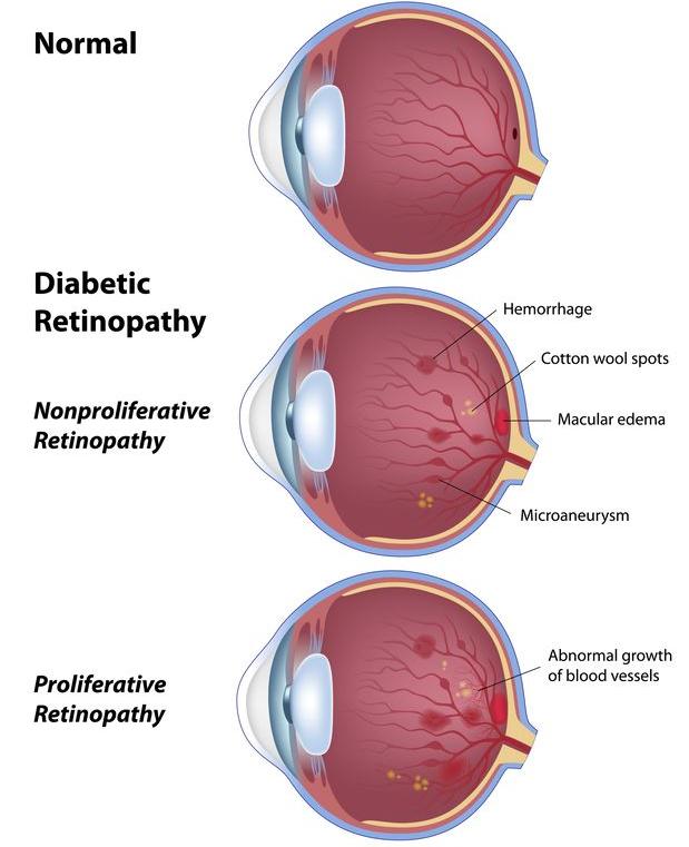 123-anatom-diab-retinopath-01-19.png
