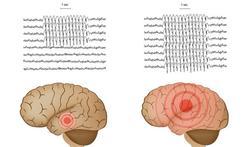 Nieuw detectiesysteem voor nachtelijke epilepsie-aanvallen