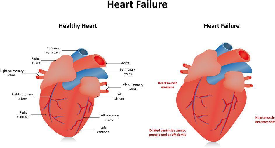 123-anatom-hartfalen-1-06-18.jpg