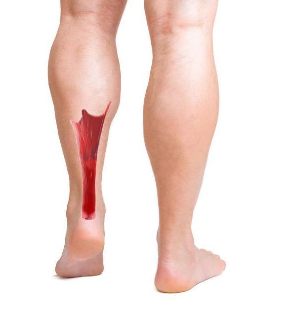 Aandoeningen Artsenwijzer Achillespeesklachten