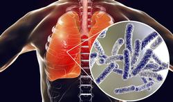 Legionella of veteranenziekte