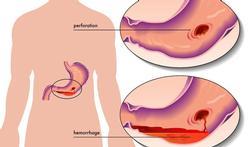 Maagperforatie: een medische noodsituatie