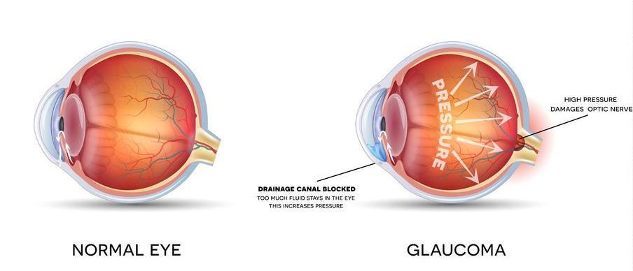 123-anatom-oog-glaucoom-08-18.jpg