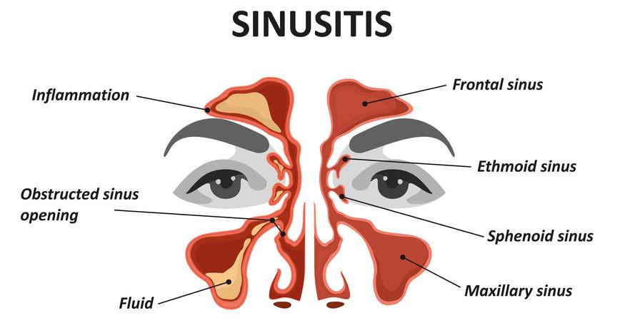123-anatom-sinusitis-03-19.png