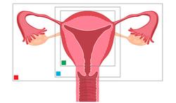 Verwijderen van de baarmoeder (Hysterectomie)