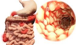 Doorbraak in behandeling darmschade bij ziekte van Crohn