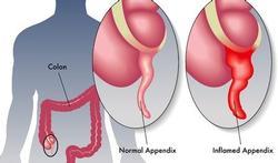 Geen operatie maar antibiotica bij appendicitis?