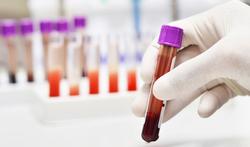Downsyndroom opsporen via bloedtest (NIPT) kan in diverse ziekenhuizen in België