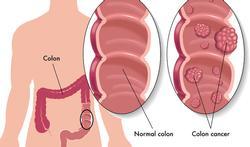 123-darmkanker-anatom-colonca-poliep-02-18.jpg