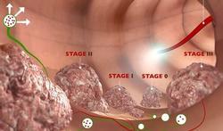 Minder controle bij familiaire darmkanker veilig
