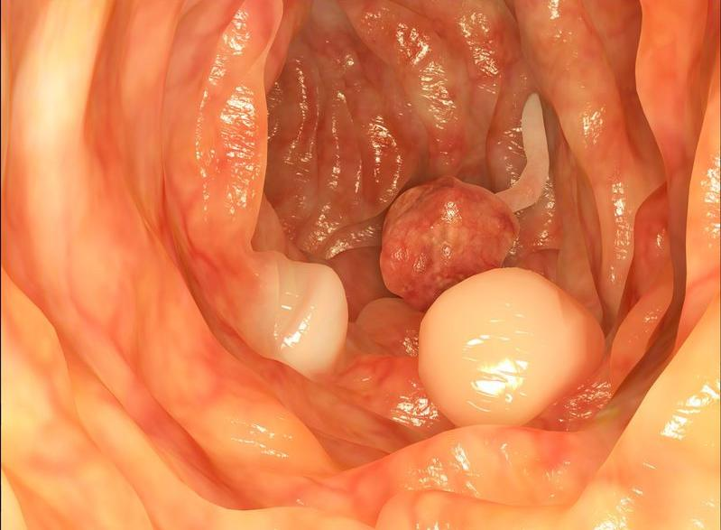 123-divert-colon-endoscop-04-18.jpg