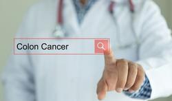 Bevolkingsonderzoek Dikkedarmkanker wordt uitgebreid naar 53- en 54-jarigen