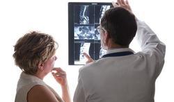 Soorten rugpijn (4): Artrose van de wervelkolom
