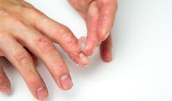 Handen wassen: advies voor mensen met psoriasis of eczeem