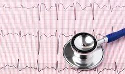 Week van het hartritme-Voorkamerfibrillatie