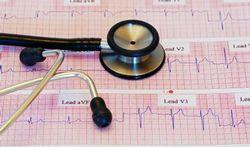 Sterfte na hartinfarct daalt jaarlijks met 10 procent