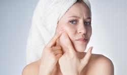 123-h-acne-zwang-vrouw-01-19.jpg