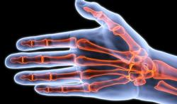 Nieuwe reuma-scanner voor opvolging reumatoïde artritis