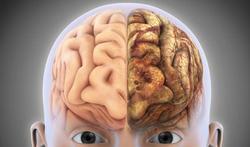 Week van de Niet-aangeboren hersenletsels (NAH):