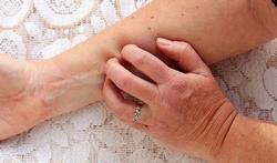 Eczeem geeft mogelijk verhoogd risico op hart- en vaatziekten