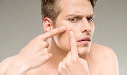 Het misverstand over voeding en acne