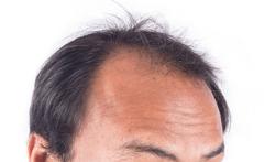 123-man-alopecia-kaalheid-10-18.png