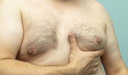 Gynaecomastie ( overdreven borstontwikkeling bij mannen)