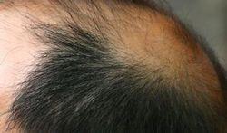 Verhoogt vroege kaalheid risico op prostaatkanker?