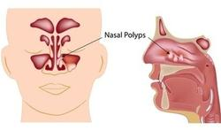 Nieuwe behandeling voor chronische sinusitis met neuspoliepen