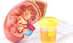 123-nier-urineoz-UWI-02-18.jpg