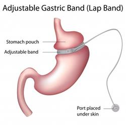 123-obesit-gastric-band-170-12.jpg