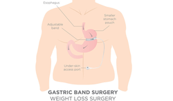 Onderzoek: Onderging u de afgelopen 4 jaar een maagoperatie om te vermageren?