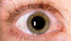 Wat is diabetische retinopathie en macropathie en wat kunt u eraan doen?